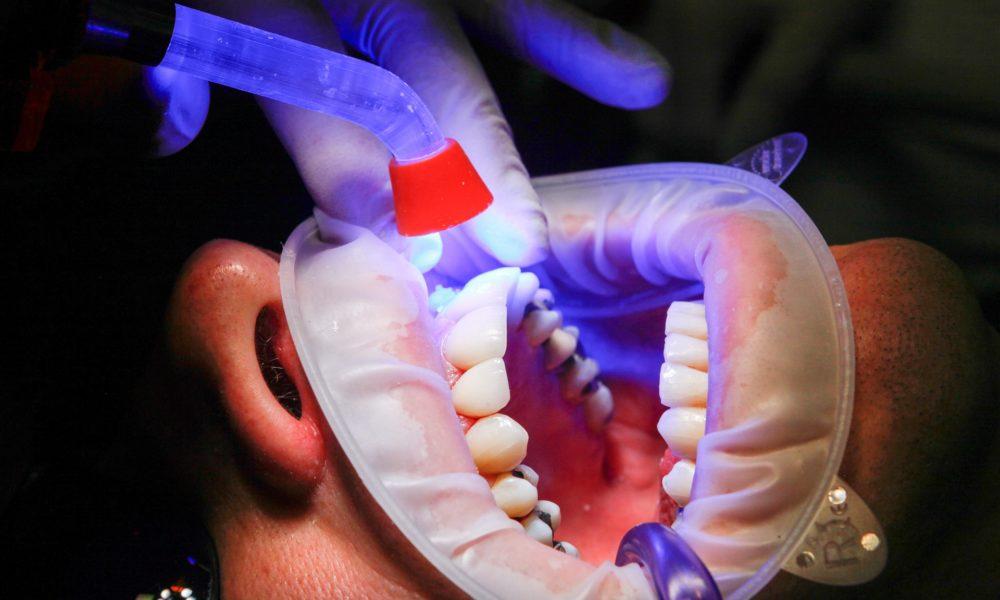 Zła sposób odżywiania się to większe braki w jamie ustnej a dodatkowo ich utratę