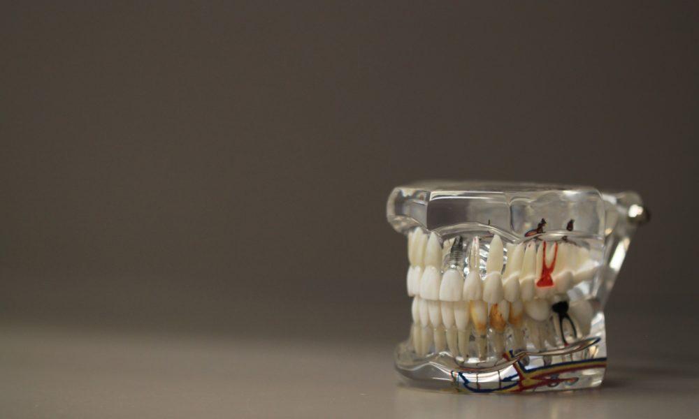 Zła dieta żywienia się to większe braki w jamie ustnej oraz również ich zgubę