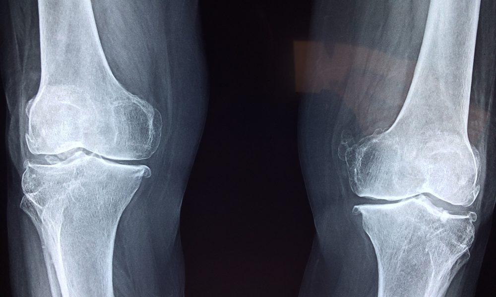 Artroskopia kolana – najlepsza diagnoza.